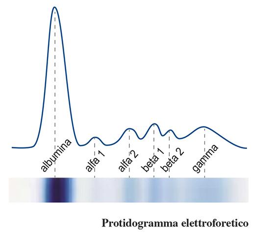 quadroproteico protidogramma
