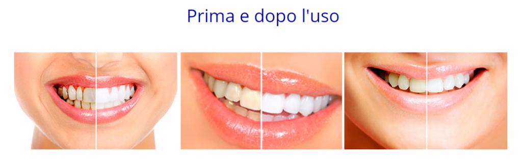 dental whitestrips prima dopo uso