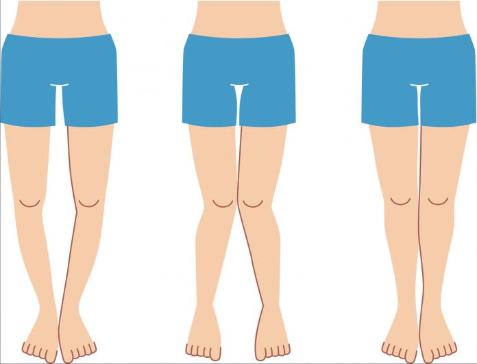 si-possono-correggere-le-gambe-storte-esercizi-rimedi-e-libro-ebook