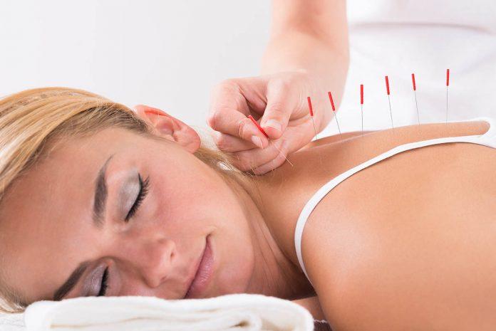 agopuntura-che-cose-benefici-proprieta-e-utilizzi