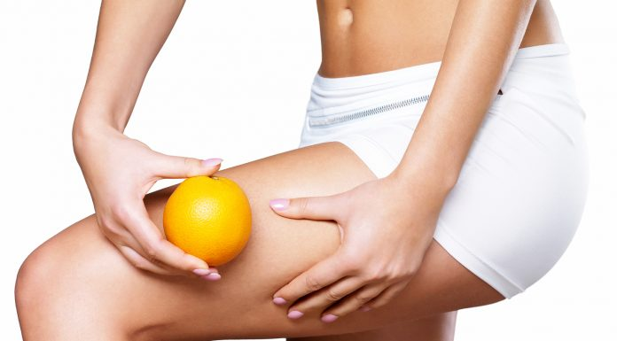 cellulite che cose sintomi cause e possibili cure
