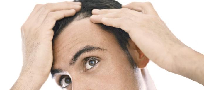 DHT: che cos'è e come funziona il Diidrotestosterone