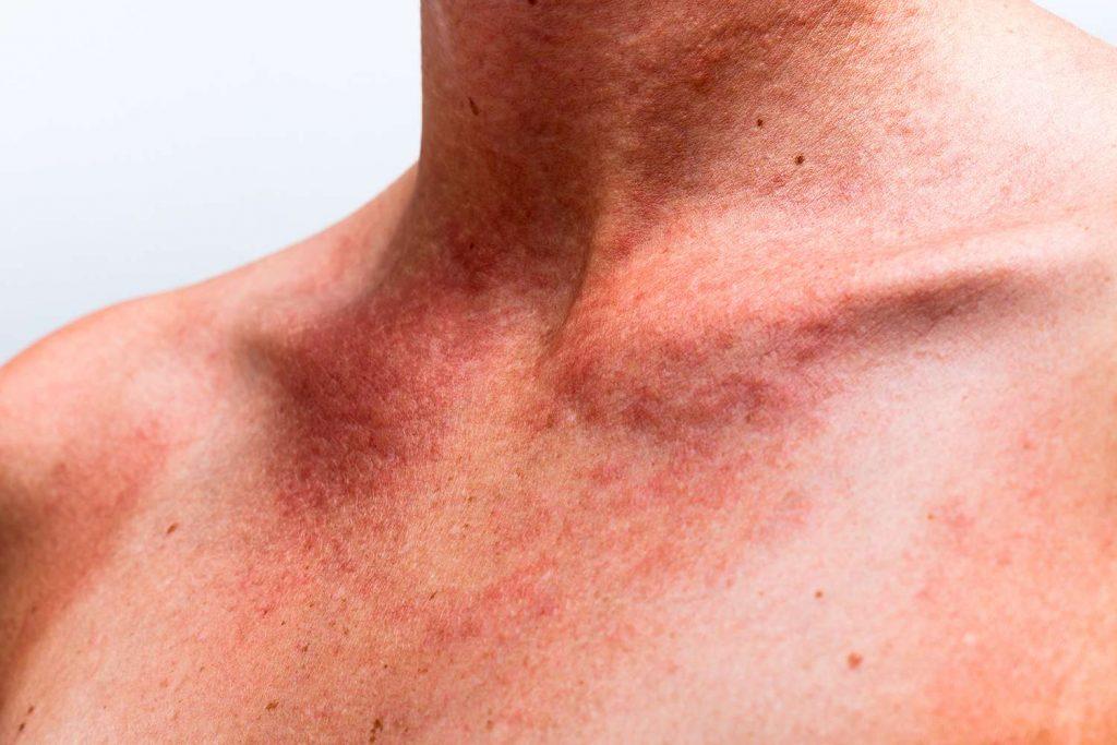 eczema che cose cause sintomi e cure