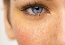 iperpigmentazione che cose cause e possibili soluzioni