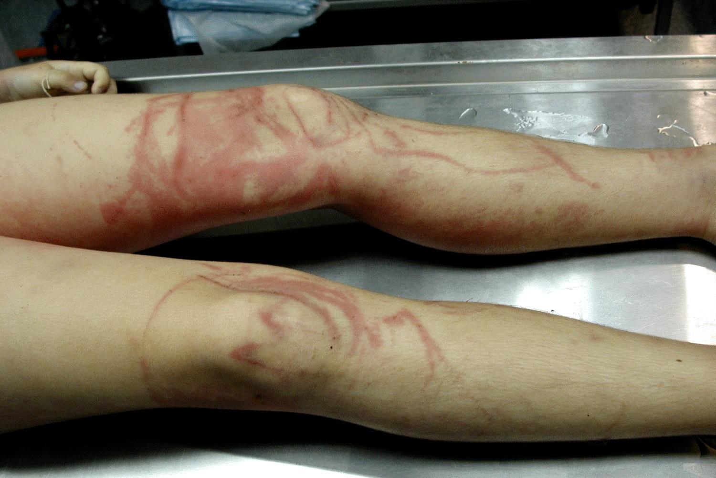 Puntura di Medusa: come comportarsi, sintomi, conseguenze ... - photo#17