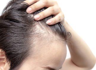 Alopecia: tipologie, cause, rimedi e possibili cure