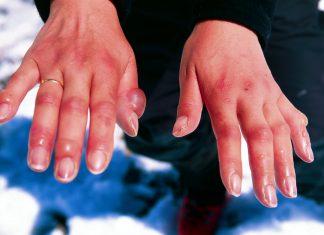 Geloni: sintomi, cause, prevenzione e trattamento