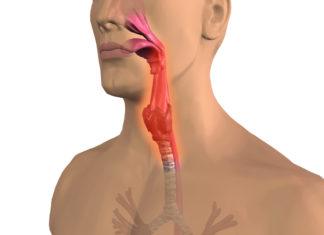 Faringite: che cos'è, sintomi, cause e possibili cure