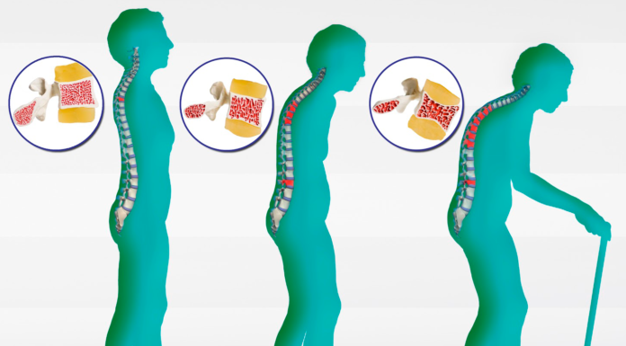 Osteoporosi: che cos'è, sintomi, cause, diagnosi e possibili cure e rimedi