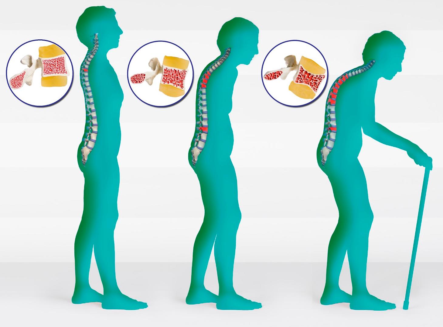 Risultati immagini per osteoporosi