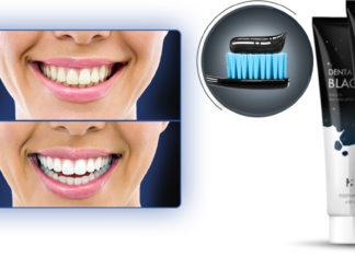 dentablack-dentifricio-nero-sbiancadenti-funziona-recensioni-opinioni-e-dove-comprarlo