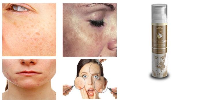 DermaSkin siero: aiuta a schiarire la pelle di viso, corpo e décolleté? Recensioni, opinioni e dove comprarlo