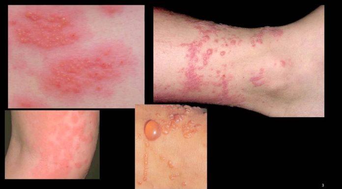 Dermatite: che cos'è, sintomi, tipologie, cause e come diagnosticarla
