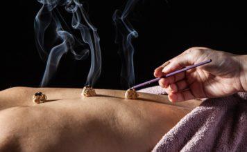 Moxibustione o Moxa: che cos'è, curare con il calore, punti moxa e controindicazioni