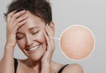 Pelle Grassa: che cos'è, cause, sintomi e possibili cure