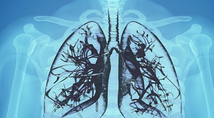 Pneumoconiosi: che cos'è, sintomi, cause, diagnosi e possibili rimedi naturali