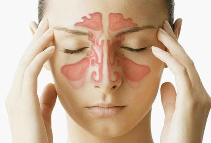 Sinusite: che cos'è, sintomi, cause, diagnosi e possibili cure