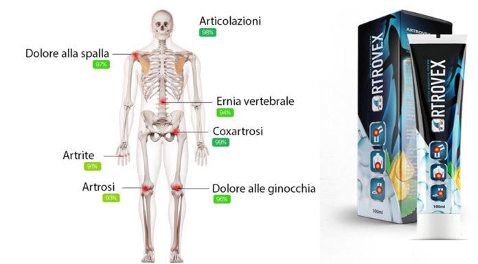 Artrovex Crema Gel: allevia Dolori e Infiammazioni Articolari? Recensioni, opinioni e dove comprarla