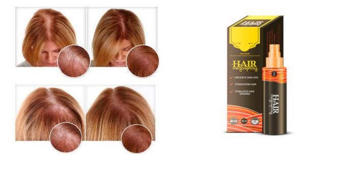 Hair MegaSpray: Olio per Caduta e Cura dei Capelli, funziona davvero? Recensioni, opinioni e dove comprarlo