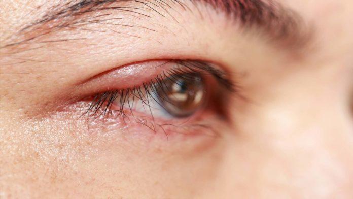Blefarite: che cos'è, cause, sintomi e possibili cure
