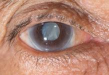 Cataratta: che cos'è, sintomi, cause, diagnosi e possibili cure