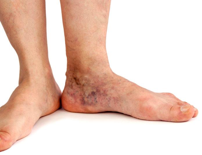 Insufficienza Venosa: che cos'è, cause, sintomi e possibili cure