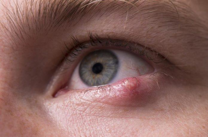 Orzaiolo agli occhi: che cos'è, sintomi, cause e possibili cure