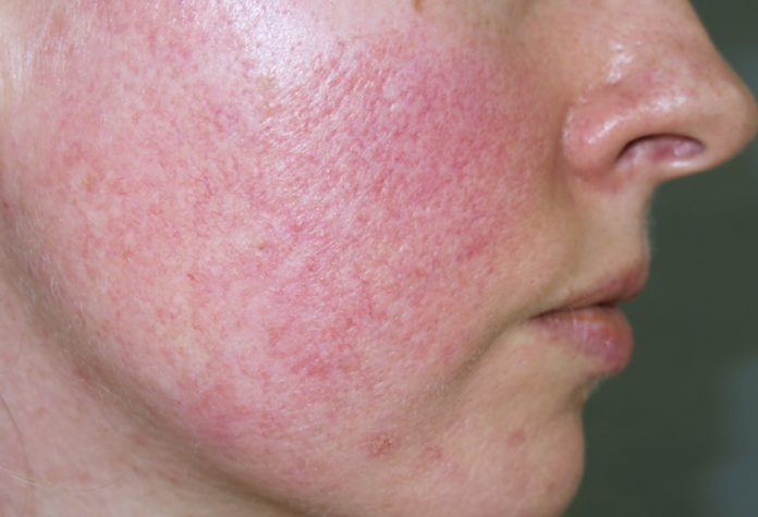 Acne Rosacea: che cos'è, come si forma, cause e cure
