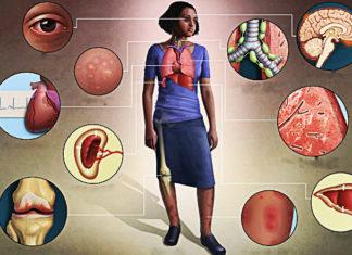 Sarcoidosi: che cos'è, sintomi, cause, diagnosi e possibili cure