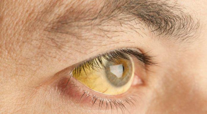 Ittero: che cos'è, sintomi, cause e possibili cure