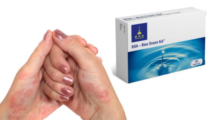 Blue Ocean Aid (BOA): Compresse per combattere la Psoriasi, funzionano davvero? Recensioni, Opinioni e dove comprarlo