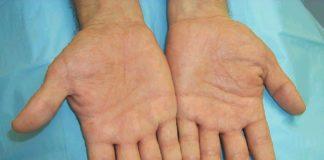 Disidrosi: che cos'è, sintomi, cause, diagnosi e possibili cure