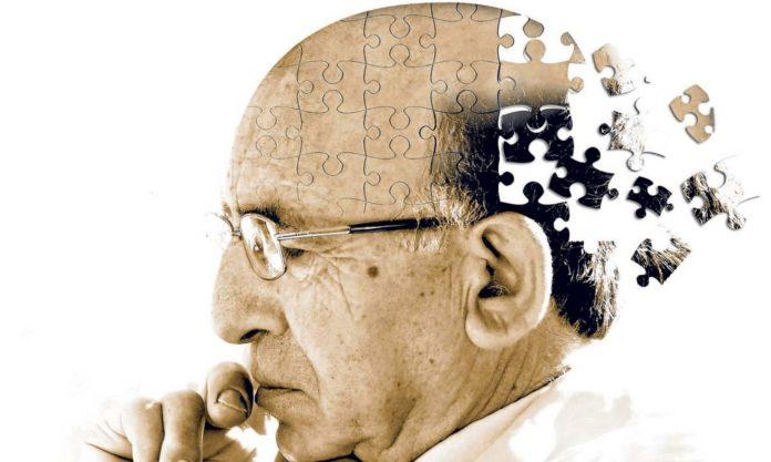 Morbo di Alzheimer: che cos'è, sintomi, cause e possibili cure