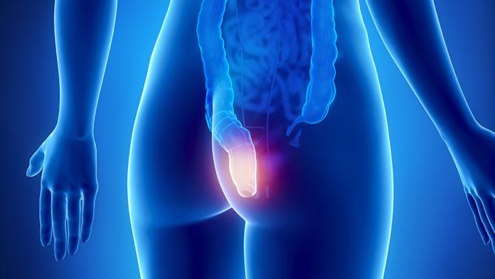Ragadi Anali: cosa sono, sintomi, cause e possibili cure