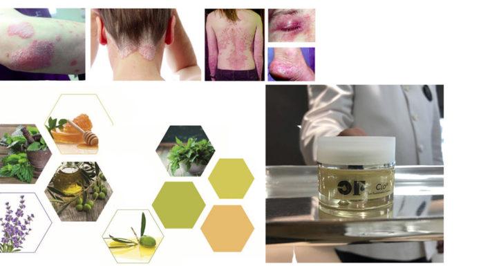 Clo Oli Fit: Crema Eco-Sostenibile OF per combattere Psoriasi ed Eczema, funziona davvero? Recensioni, Opinioni e dove comprarlo