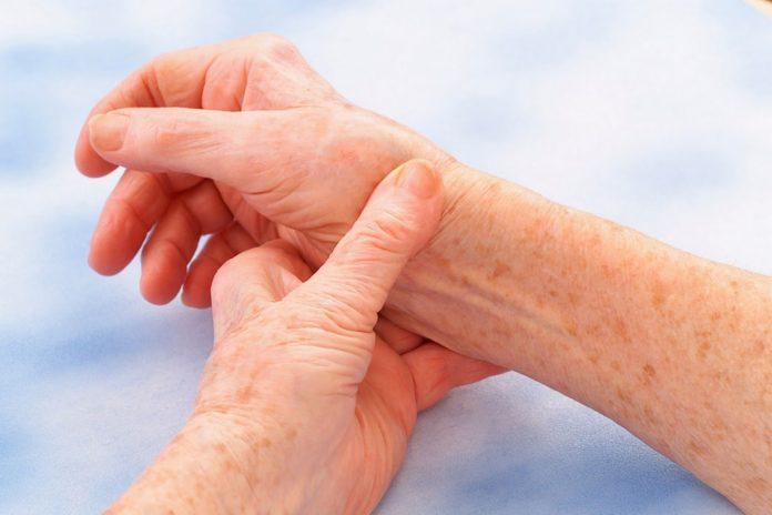 Febbre Reumatica: che cos'è, cause, sintomi, diagnosi e possibili cure