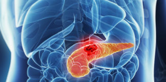 Insulinoma: che cos'è, sintomi, diagnosi e possibili cure