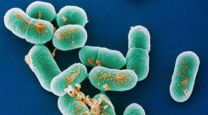Listeria: che cos'è, sintomi, cause, diagnosi e possibili cure