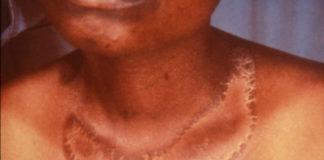 Pellagra: che cos'è, sintomi, cause, diagnosi e possibili cure