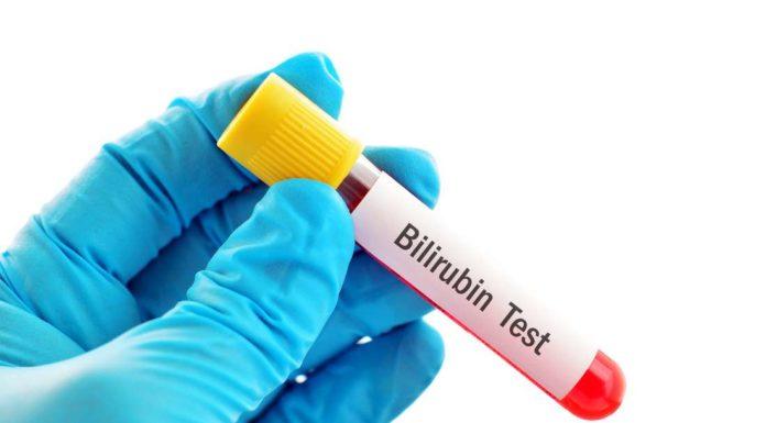 Bilirubina: che cos'è, a cosa serve, come si misura e risultati test