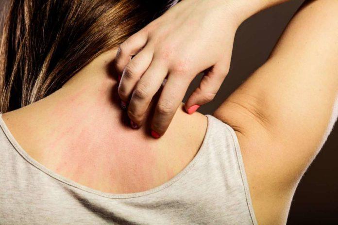 Dermatite Allergica: che cos'è, sintomi, cause e come diagnosticarla