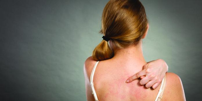 Dermatite Atopica: che cos'è, sintomi, cause e come diagnosticarla