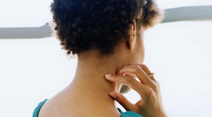Dermatite da sudore: che cos'è, sintomi, cause e come diagnosticarla