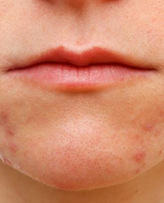 Dermatite Periorale: che cos'è, sintomi, cause e come diagnosticarla