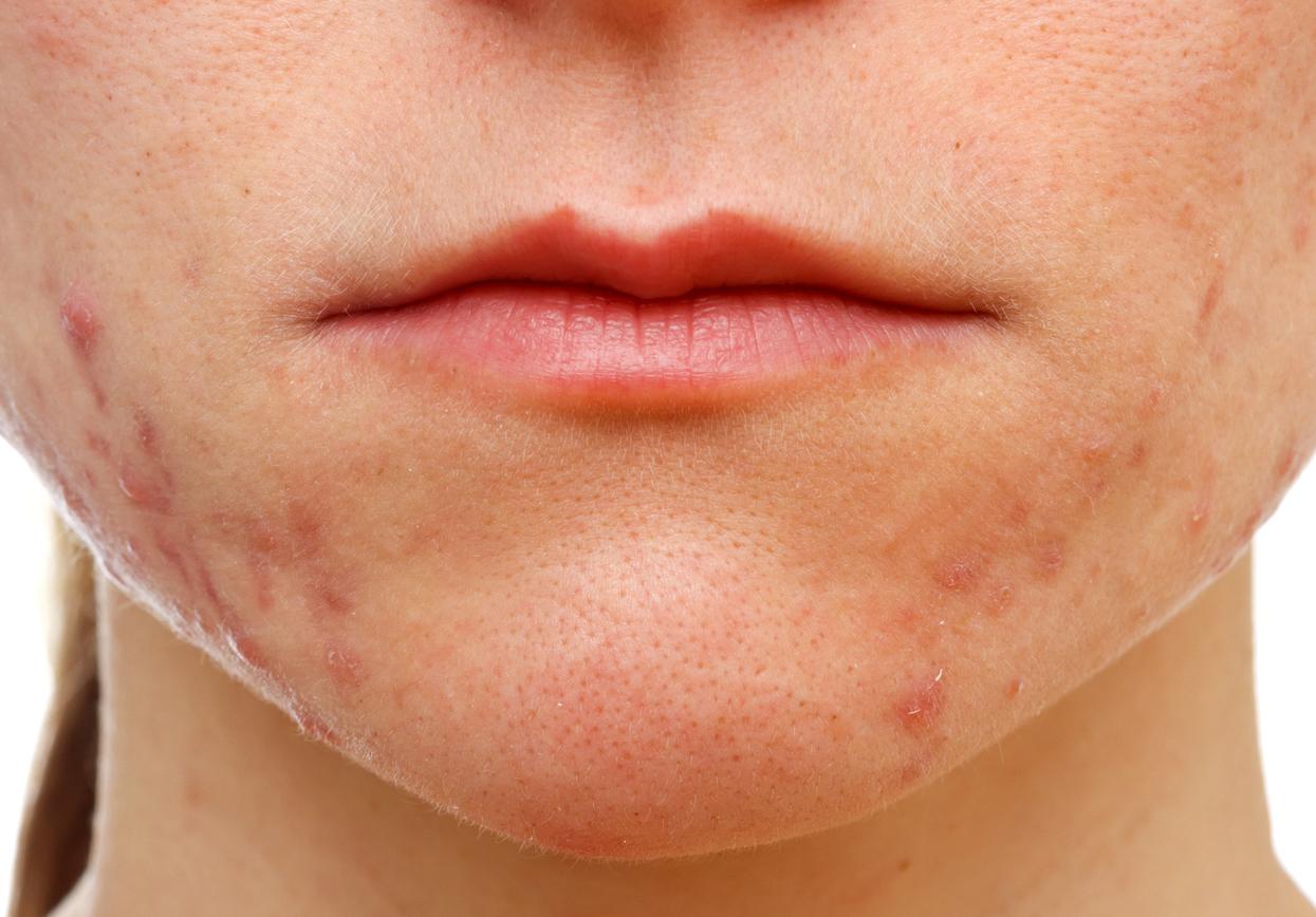 Dermatite Periorale: c...