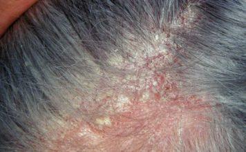 Dermatite Seborroica: che cos'è, sintomi, cause e come diagnosticarla