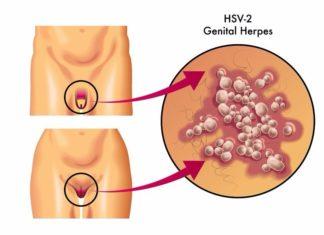 Herpes Genitale: che cos'è, sintomi, diagnosi e possibili cure