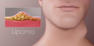 Lipoma: che cos'è, sintomi, cause e come diagnosticarlo