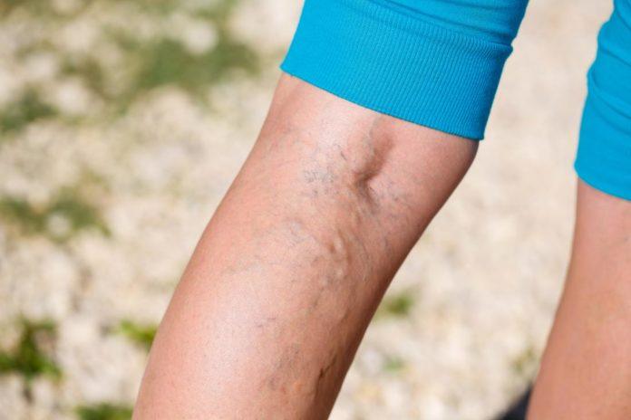 Dermatite da Stasi: che cos'è, sintomi, cause e come diagnosticarla
