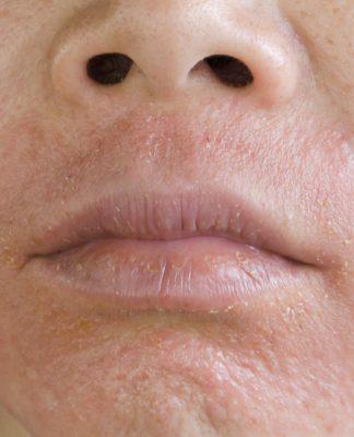 Dermatite del Viso: che cos'è, sintomi, cause e come diagnosticarla
